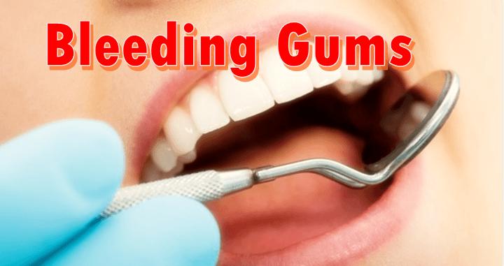bleeding gums bleeding gums 1