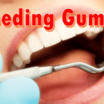 bleeding_gums