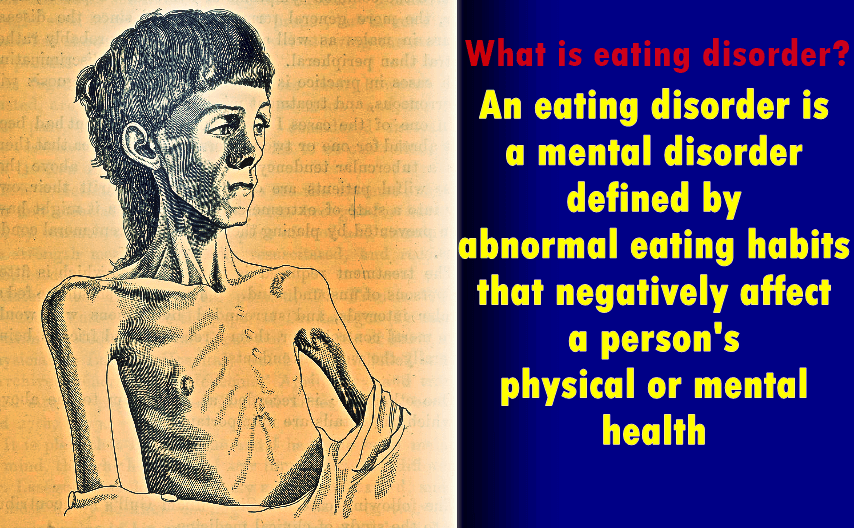 what_is_eating_disorder