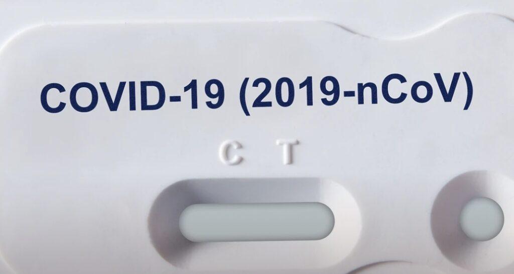 coronavirus coronavirus test kit
