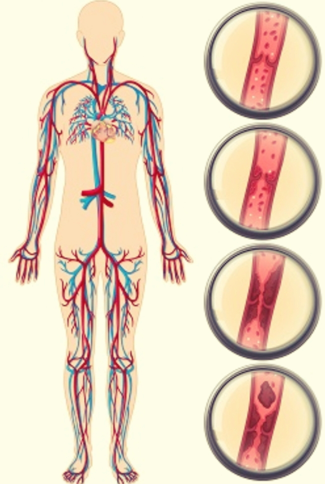 symptoms of blood clot