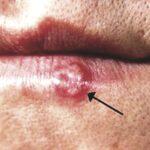 herpes-STDs